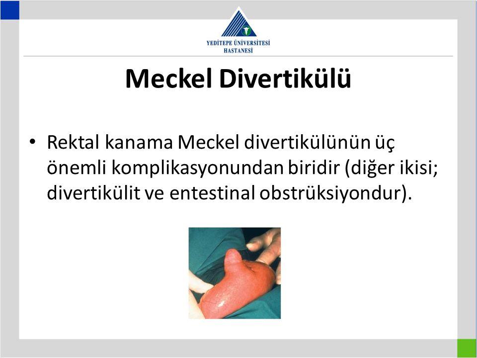 Meckel Divertikülü Rektal kanama Meckel divertikülünün üç önemli komplikasyonundan biridir (diğer ikisi; divertikülit ve entestinal obstrüksiyondur).