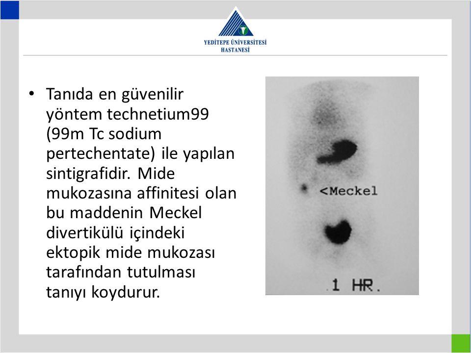 Tanıda en güvenilir yöntem technetium99 (99m Tc sodium pertechentate) ile yapılan sintigrafidir. Mide mukozasına affinitesi olan bu maddenin Meckel di