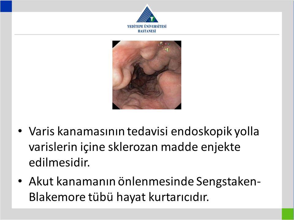 Varis kanamasının tedavisi endoskopik yolla varislerin içine sklerozan madde enjekte edilmesidir. Akut kanamanın önlenmesinde Sengstaken- Blakemore tü