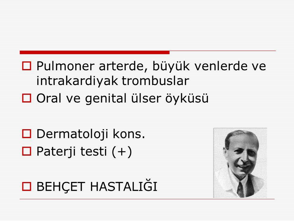  Pulmoner arterde, büyük venlerde ve intrakardiyak trombuslar  Oral ve genital ülser öyküsü  Dermatoloji kons.