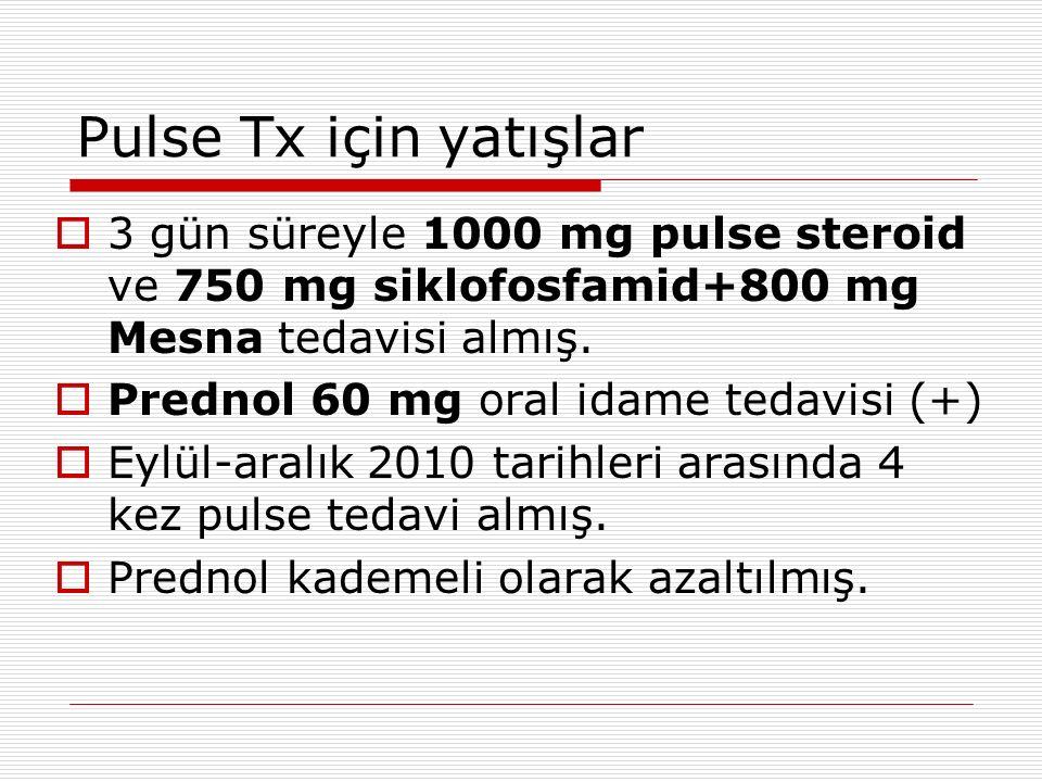 Pulse Tx için yatışlar  3 gün süreyle 1000 mg pulse steroid ve 750 mg siklofosfamid+800 mg Mesna tedavisi almış.