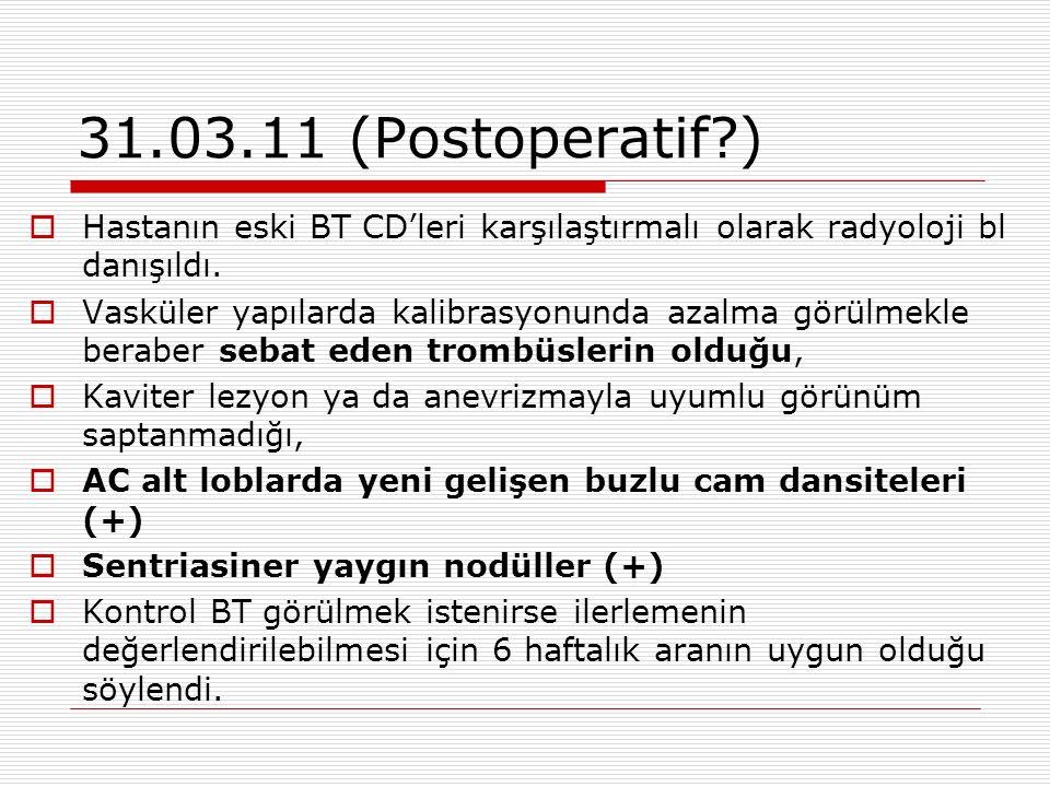 31.03.11 (Postoperatif )  Hastanın eski BT CD'leri karşılaştırmalı olarak radyoloji bl danışıldı.