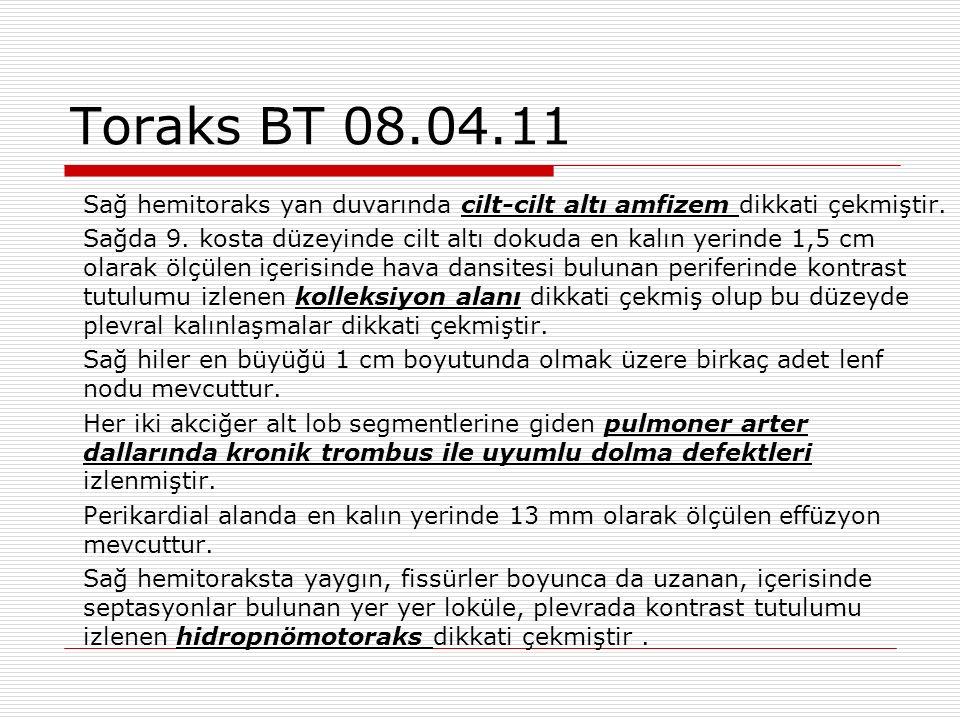 Toraks BT 08.04.11 Sağ hemitoraks yan duvarında cilt-cilt altı amfizem dikkati çekmiştir.