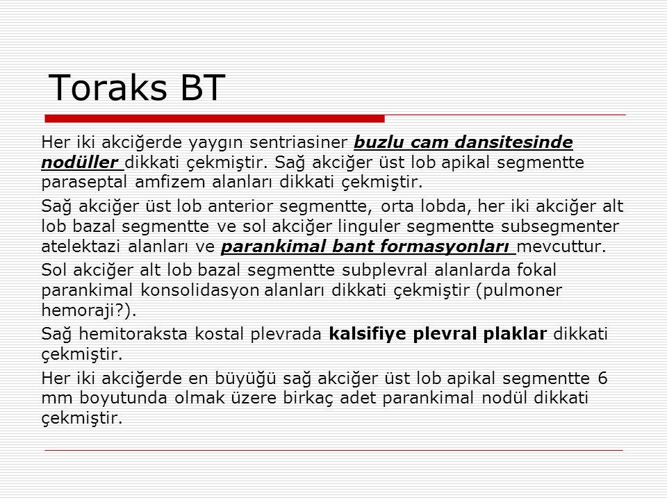 Toraks BT Her iki akciğerde yaygın sentriasiner buzlu cam dansitesinde nodüller dikkati çekmiştir.