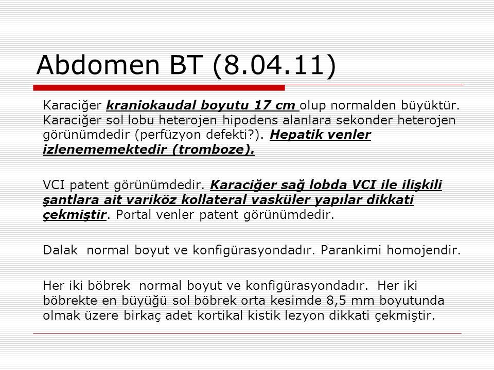 Abdomen BT (8.04.11) Karaciğer kraniokaudal boyutu 17 cm olup normalden büyüktür.