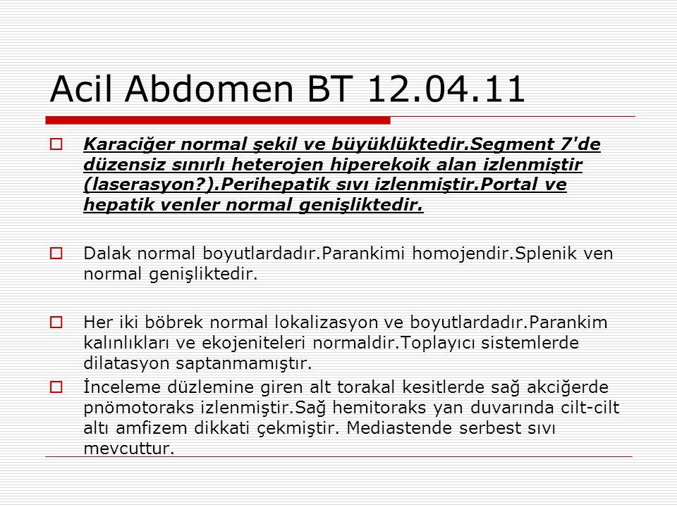 Acil Abdomen BT 12.04.11  Karaciğer normal şekil ve büyüklüktedir.Segment 7 de düzensiz sınırlı heterojen hiperekoik alan izlenmiştir (laserasyon ).Perihepatik sıvı izlenmiştir.Portal ve hepatik venler normal genişliktedir.