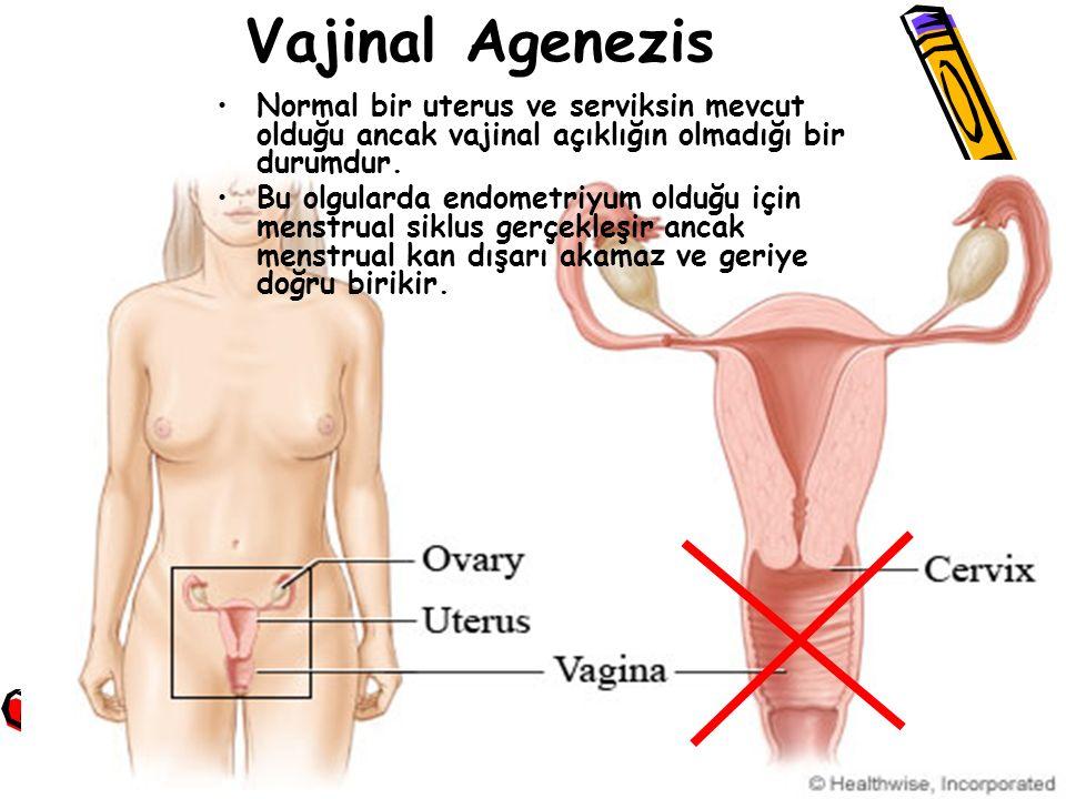 Normal bir uterus ve serviksin mevcut olduğu ancak vajinal açıklığın olmadığı bir durumdur. Bu olgularda endometriyum olduğu için menstrual siklus ger
