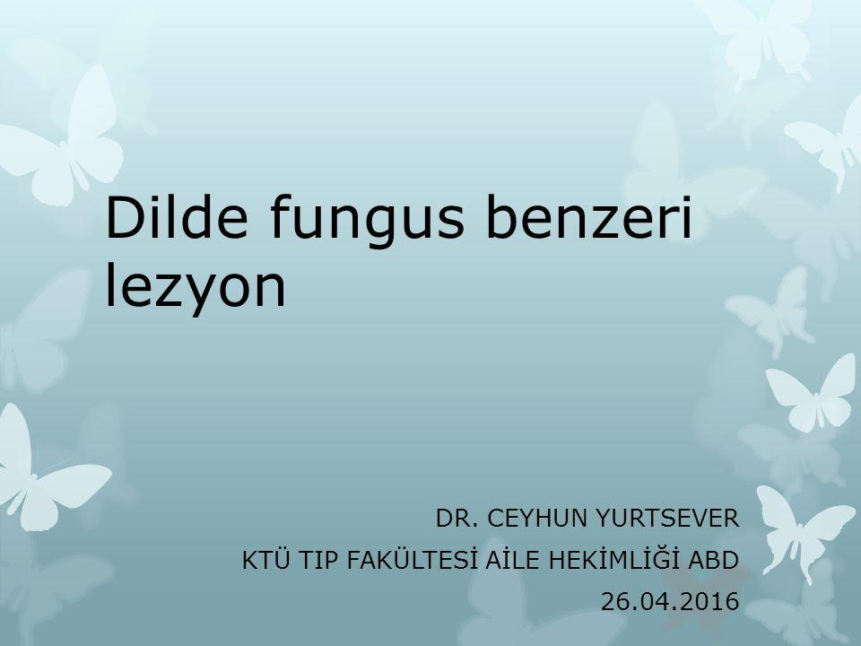Dilde fungus benzeri lezyon DR. CEYHUN YURTSEVER KTÜ TIP FAKÜLTESİ AİLE HEKİMLİĞİ ABD 26.04.2016