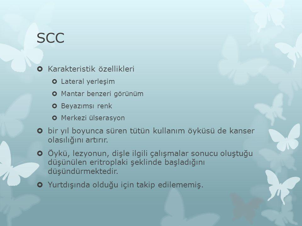 SCC  Karakteristik özellikleri  Lateral yerleşim  Mantar benzeri görünüm  Beyazımsı renk  Merkezi ülserasyon  bir yıl boyunca süren tütün kullan