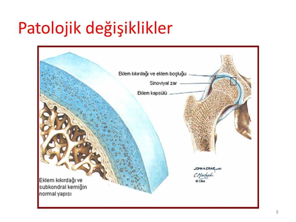 ACR Kriterleri - Kalça Bir önceki ayın çoğu günlerinde kalça ağrısı 1.ESR 20mm/saat veya altında olacak 2.Femur ve/veya asetabulumda (radyografik olarak) osteofitler 3.Radyografik olarak kalça eklem aralığında daralma Sensivite %89 ve spesifikte %91 Arthritis Rheum.