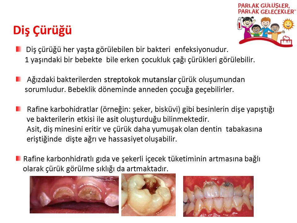 Diş Çürüğü Diş çürüğü her yaşta görülebilen bir bakteri enfeksiyonudur. 1 yaşındaki bir bebekte bile erken çocukluk çağı çürükleri görülebilir. strept