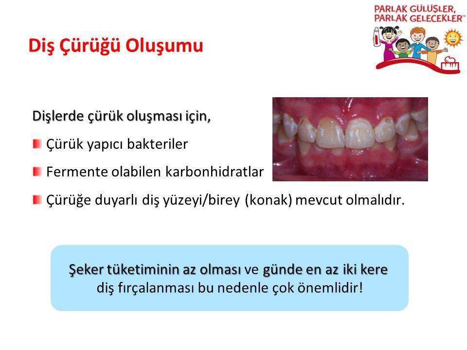 Diş Çürüğü Oluşumu Dişlerde çürük oluşması için, Çürük yapıcı bakteriler Fermente olabilen karbonhidratlar Çürüğe duyarlı diş yüzeyi/birey (konak) mev