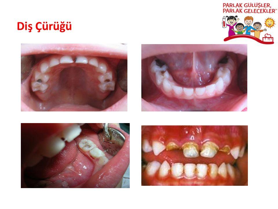 Diş Çürüğü Parlak Gülüşler Parlak Gelecekeler