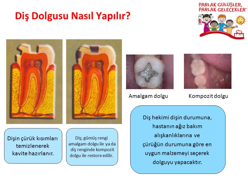 Diş Dolgusu Nasıl Yapılır? Parlak Gülüşler Parlak Gelecekeler Dişin çürük kısımları temizlenerek kavite hazırlanır. Diş; gümüş rengi amalgam dolgu ile