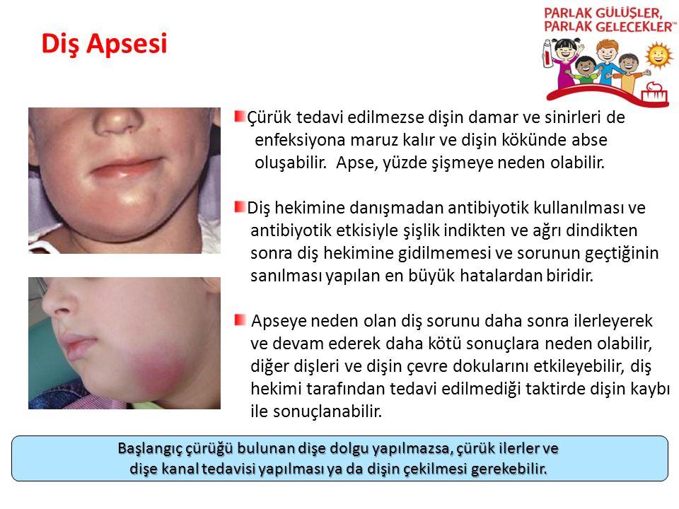 Diş Apsesi Parlak Gülüşler Parlak Gelecekeler Çürük tedavi edilmezse dişin damar ve sinirleri de enfeksiyona maruz kalır ve dişin kökünde abse oluşabi