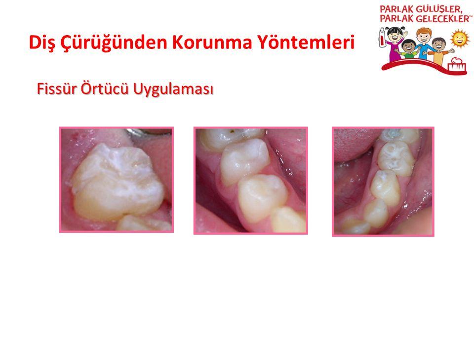 Diş Çürüğünden Korunma Yöntemleri Parlak Gülüşler Parlak Gelecekeler Fissür Örtücü Uygulaması