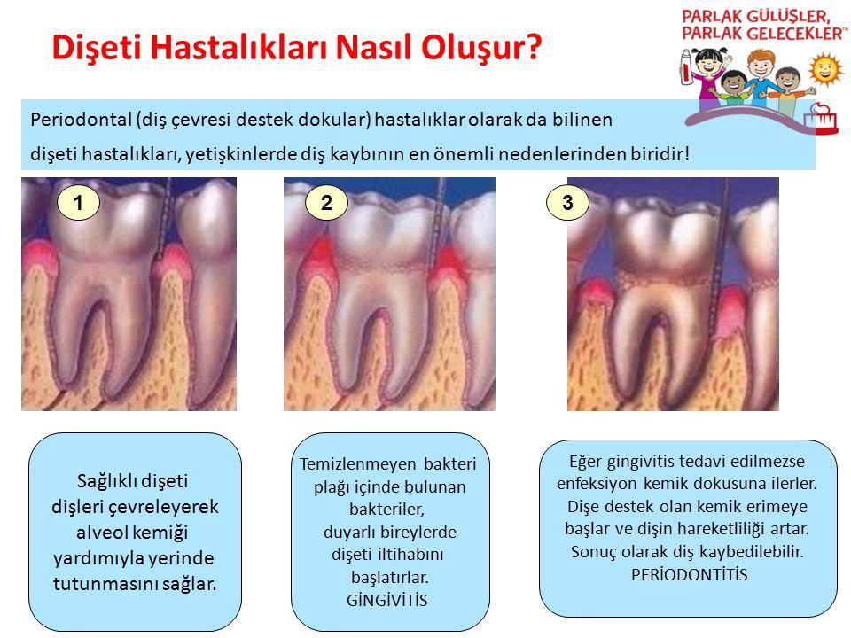 Dişeti Hastalıkları Nasıl Oluşur? Parlak Gülüşler Parlak Gelecekeler 123 Sağlıklı dişeti dişleri çevreleyerek alveol kemiği yardımıyla yerinde tutunma