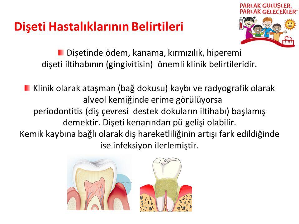 Dişeti Hastalıklarının Belirtileri Dişetinde ödem, kanama, kırmızılık, hiperemi dişeti iltihabının (gingivitisin) önemli klinik belirtileridir. Klinik
