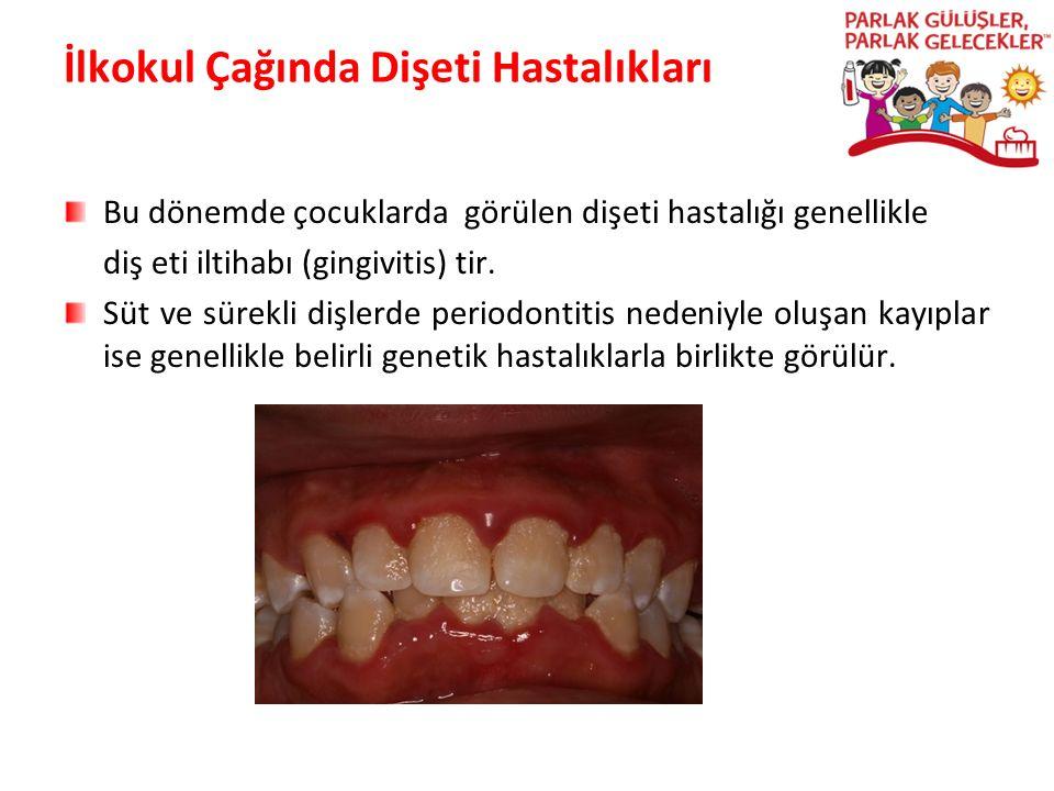 İlkokul Çağında Dişeti Hastalıkları Bu dönemde çocuklarda görülen dişeti hastalığı genellikle diş eti iltihabı (gingivitis) tir. Süt ve sürekli dişler