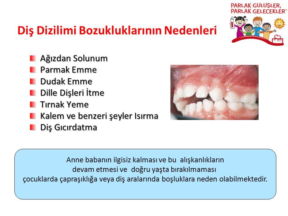 Diş Dizilimi Bozukluklarının Nedenleri Ağızdan Solunum Parmak Emme Dudak Emme Dille Dişleri İtme Tırnak Yeme Kalem ve benzeri şeyler Isırma Diş Gıcırd