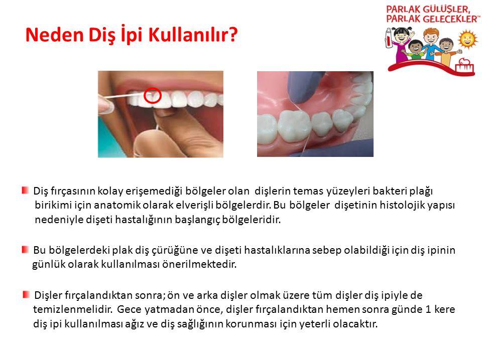 Parlak Gülüşler Parlak Gelecekeler Neden Diş İpi Kullanılır? Diş fırçasının kolay erişemediği bölgeler olan dişlerin temas yüzeyleri bakteri plağı bir