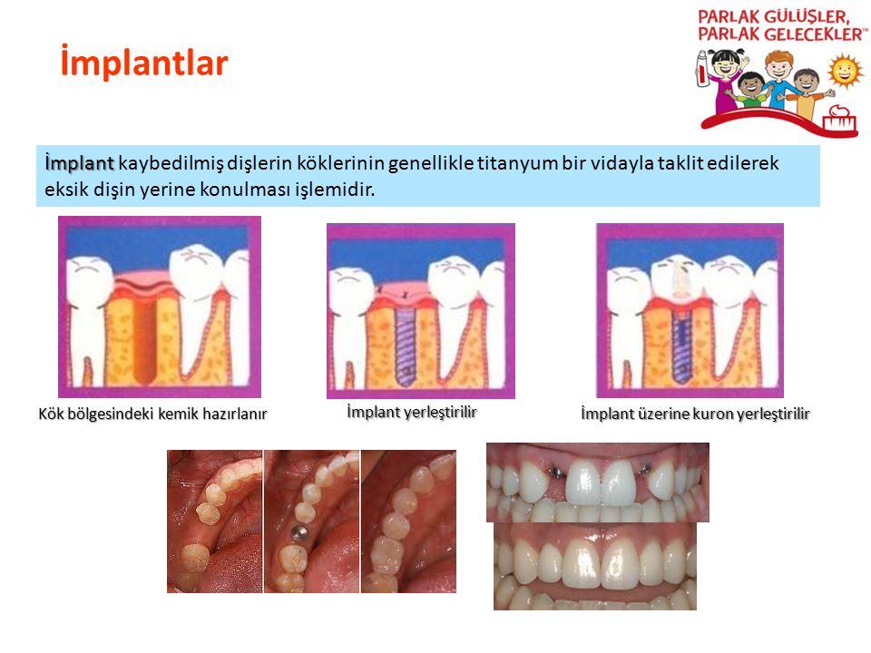 İmplantlar Parlak Gülüşler Parlak Gelecekeler İmplant İmplant kaybedilmiş dişlerin köklerinin genellikle titanyum bir vidayla taklit edilerek eksik di