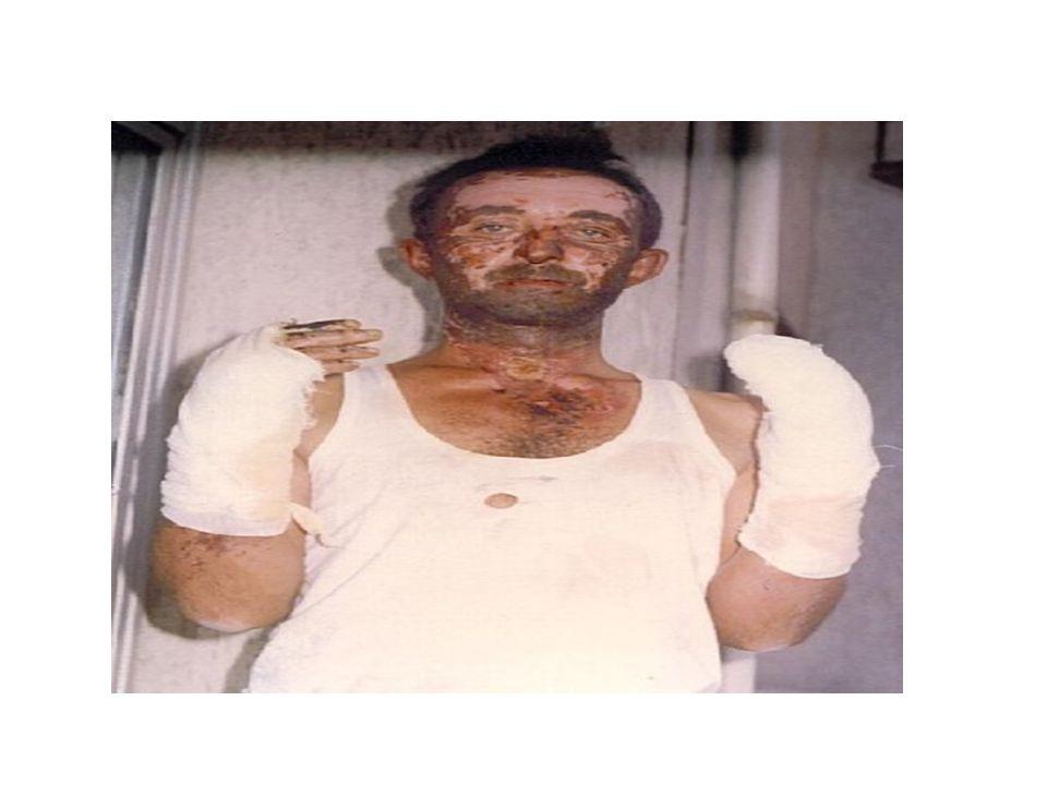 Körfez LPG Patlaması AS G 47 Küreler de yansaydı Körfez atom bombası gibi patlardı'-2002 -AKÇAGAZ