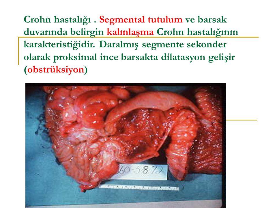 Crohn hastalığı. Segmental tutulum ve barsak duvarında belirgin kalınlaşma Crohn hastalığının karakteristiğidir. Daralmış segmente sekonder olarak pro