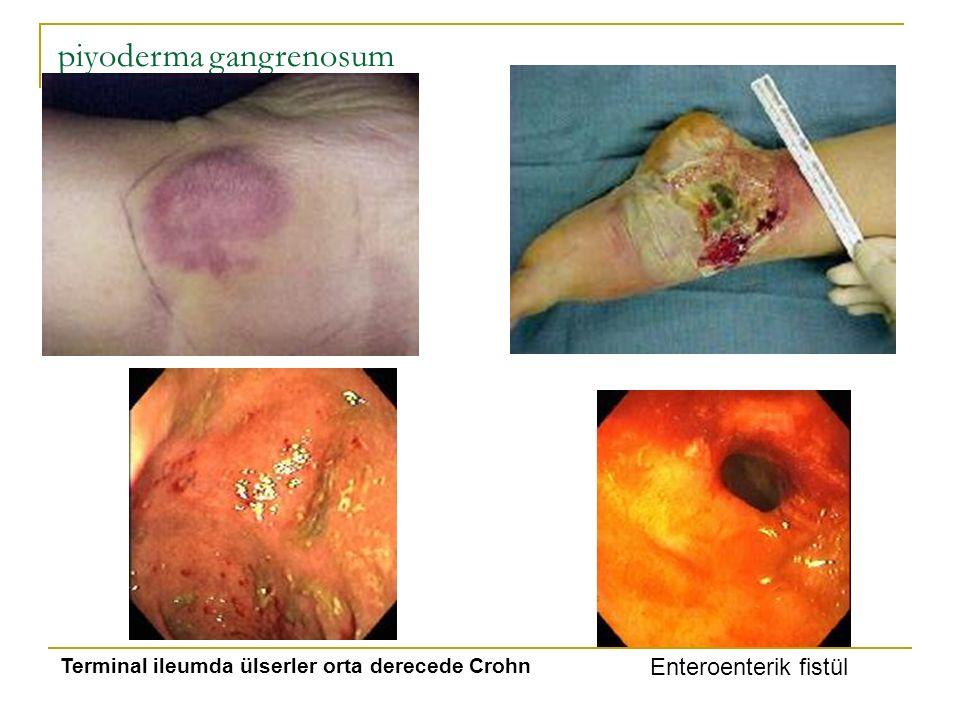 piyoderma gangrenosum Enteroenterik fistül Terminal ileumda ülserler orta derecede Crohn