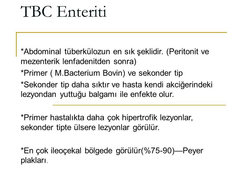 TBC Enteriti *Abdominal tüberkülozun en sık şeklidir. (Peritonit ve mezenterik lenfadenitden sonra) *Primer ( M.Bacterium Bovin) ve sekonder tip *Seko