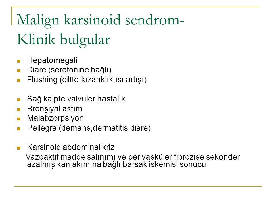 Malign karsinoid sendrom- Klinik bulgular Hepatomegali Diare (serotonine bağlı) Flushing (ciltte kızarıklık,ısı artışı) Sağ kalpte valvuler hastalık B