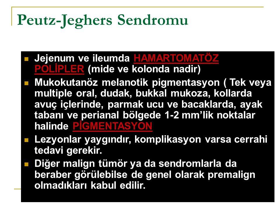 Peutz-Jeghers Sendromu Jejenum ve ileumda HAMARTOMATÖZ POLİPLER (mide ve kolonda nadir) Mukokutanöz melanotik pigmentasyon ( Tek veya multiple oral, d