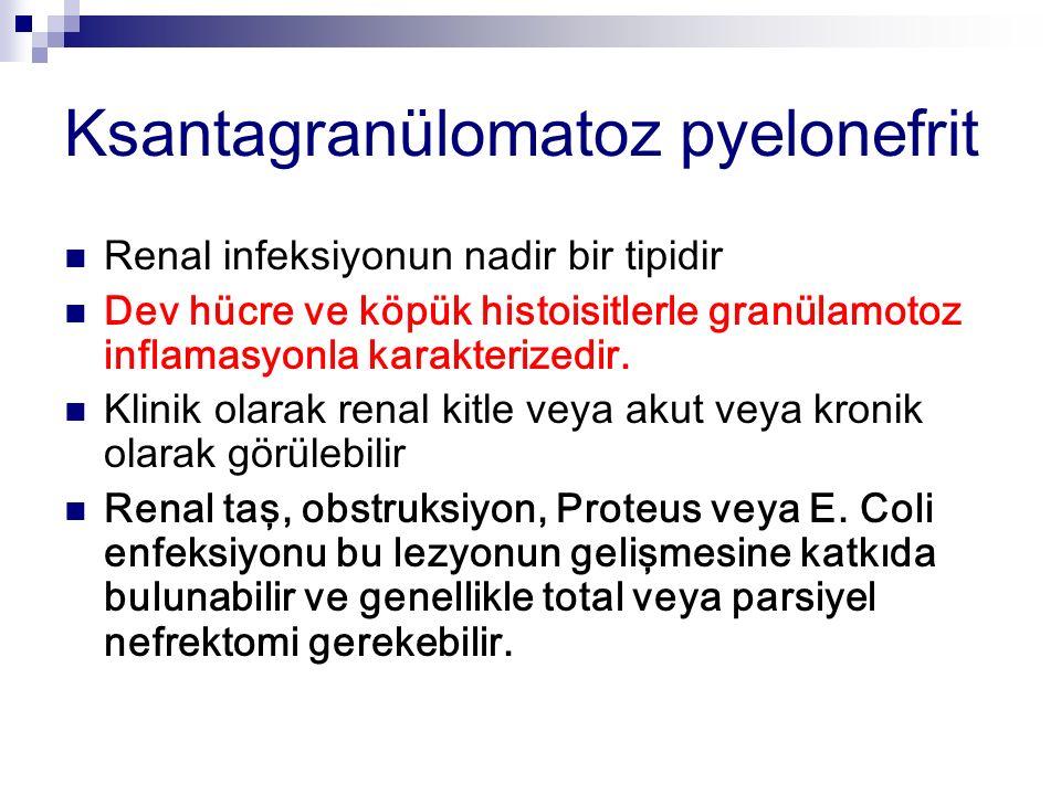 Ksantagranülomatoz pyelonefrit Renal infeksiyonun nadir bir tipidir Dev hücre ve köpük histoisitlerle granülamotoz inflamasyonla karakterizedir. Klini