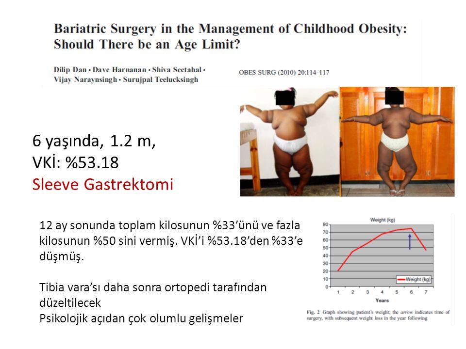 6 yaşında, 1.2 m, VKİ: %53.18 Sleeve Gastrektomi 12 ay sonunda toplam kilosunun %33'ünü ve fazla kilosunun %50 sini vermiş. VKİ'i %53.18'den %33'e düş