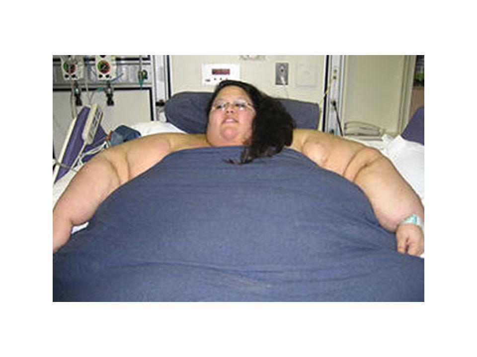 18.Bulimia gibi yeme bozkluklarının varlığı 19.