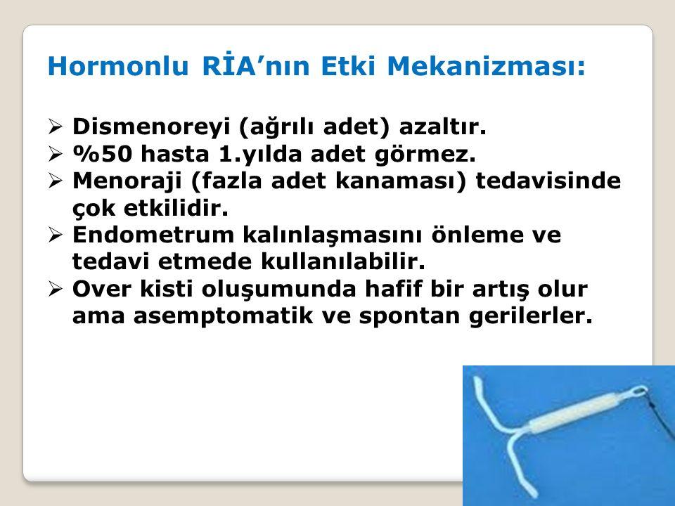 Hormonlu RİA'nın Etki Mekanizması:  Dismenoreyi (ağrılı adet) azaltır.