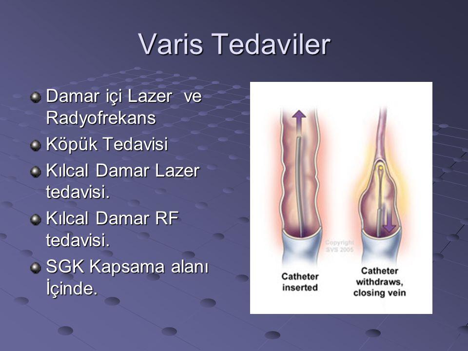 Varis Tedaviler Damar içi Lazer ve Radyofrekans Köpük Tedavisi Kılcal Damar Lazer tedavisi. Kılcal Damar RF tedavisi. SGK Kapsama alanı İçinde.