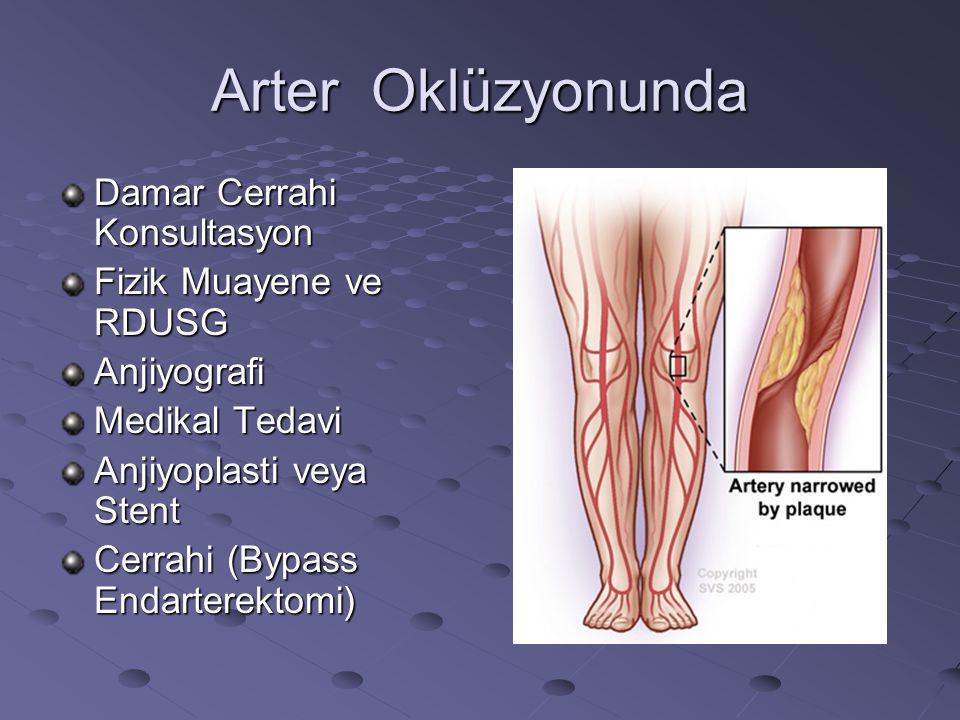Arter Oklüzyonunda Damar Cerrahi Konsultasyon Fizik Muayene ve RDUSG Anjiyografi Medikal Tedavi Anjiyoplasti veya Stent Cerrahi (Bypass Endarterektomi