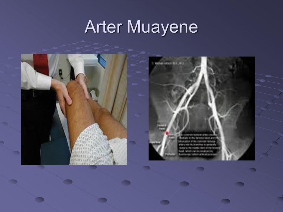 Arter Muayene