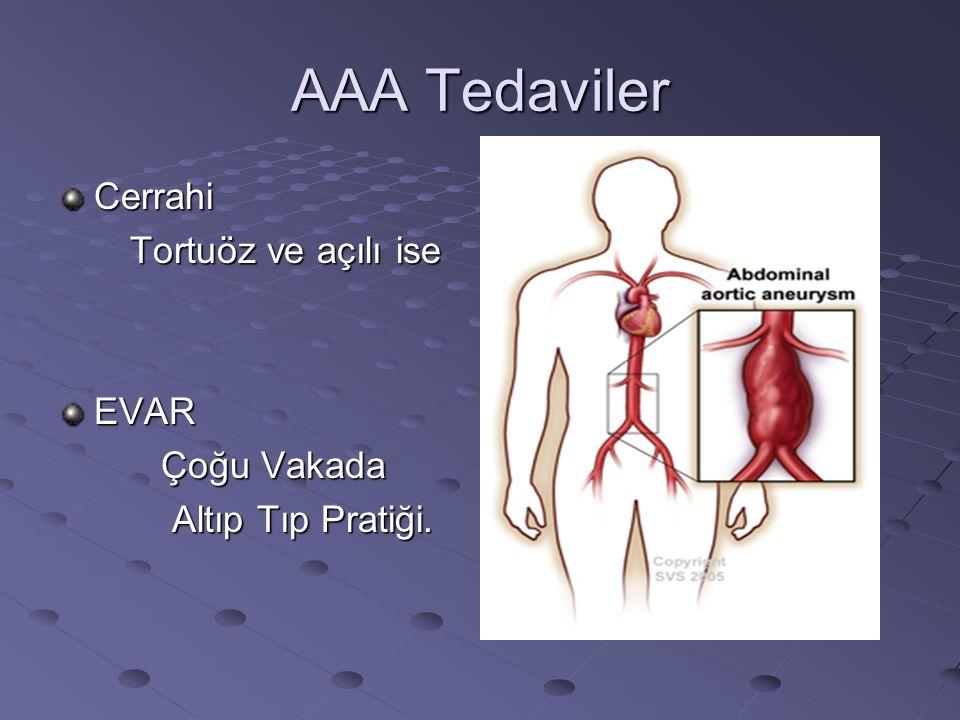 AAA Tedaviler Cerrahi Tortuöz ve açılı ise Tortuöz ve açılı ise EVAR Çoğu Vakada Çoğu Vakada Altıp Tıp Pratiği. Altıp Tıp Pratiği.