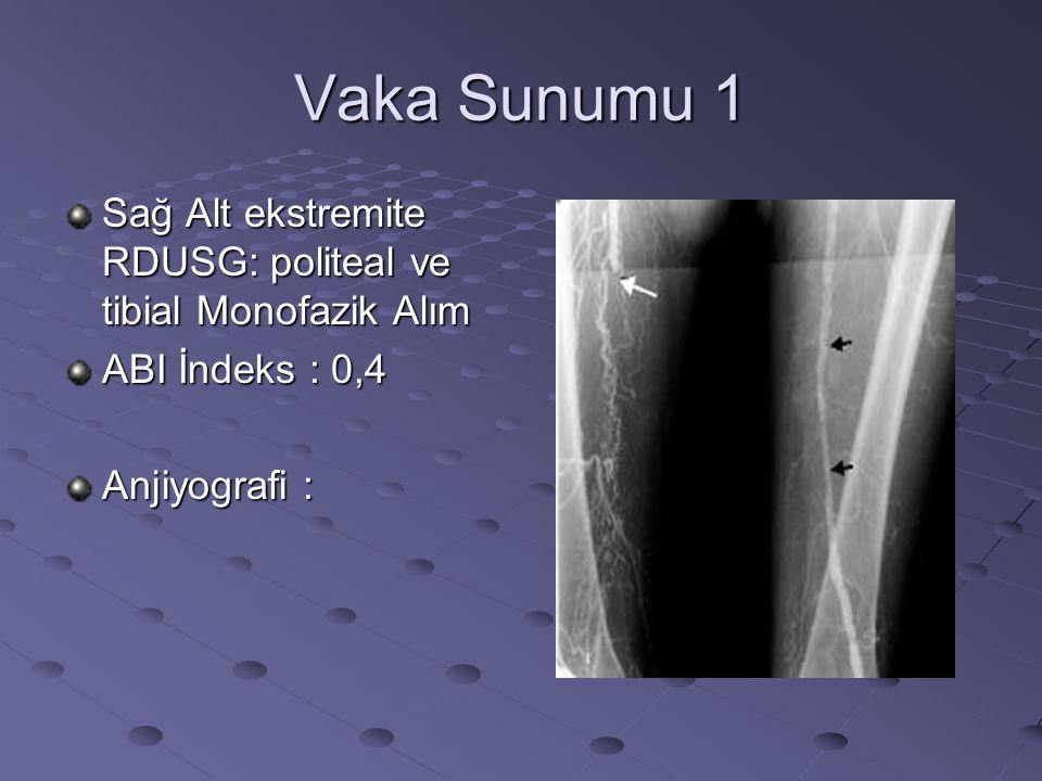 Vaka Sunumu 1 Sağ Alt ekstremite RDUSG: politeal ve tibial Monofazik Alım ABI İndeks : 0,4 Anjiyografi :