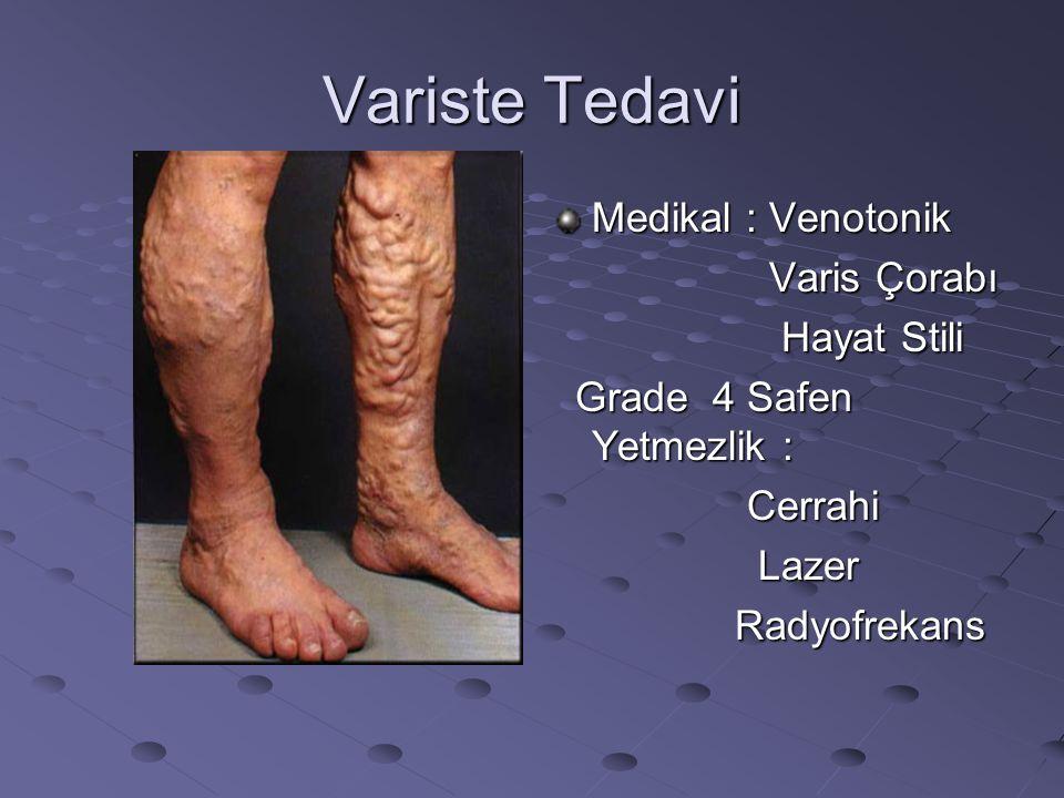 Variste Tedavi Medikal : Venotonik Varis Çorabı Varis Çorabı Hayat Stili Hayat Stili Grade 4 Safen Yetmezlik : Grade 4 Safen Yetmezlik : Cerrahi Cerra