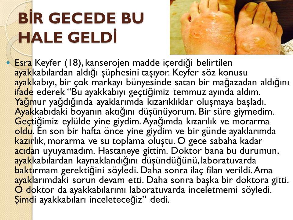 B İ R GECEDE BU HALE GELD İ Esra Keyfer (18), kanserojen madde içerdi ğ i belirtilen ayakkabılardan aldı ğ ı şüphesini taşıyor.