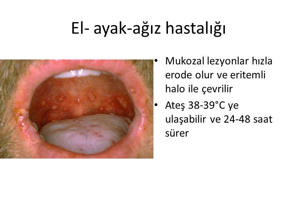 El- ayak-ağız hastalığı Mukozal lezyonlar hızla erode olur ve eritemli halo ile çevrilir Ateş 38-39°C ye ulaşabilir ve 24-48 saat sürer