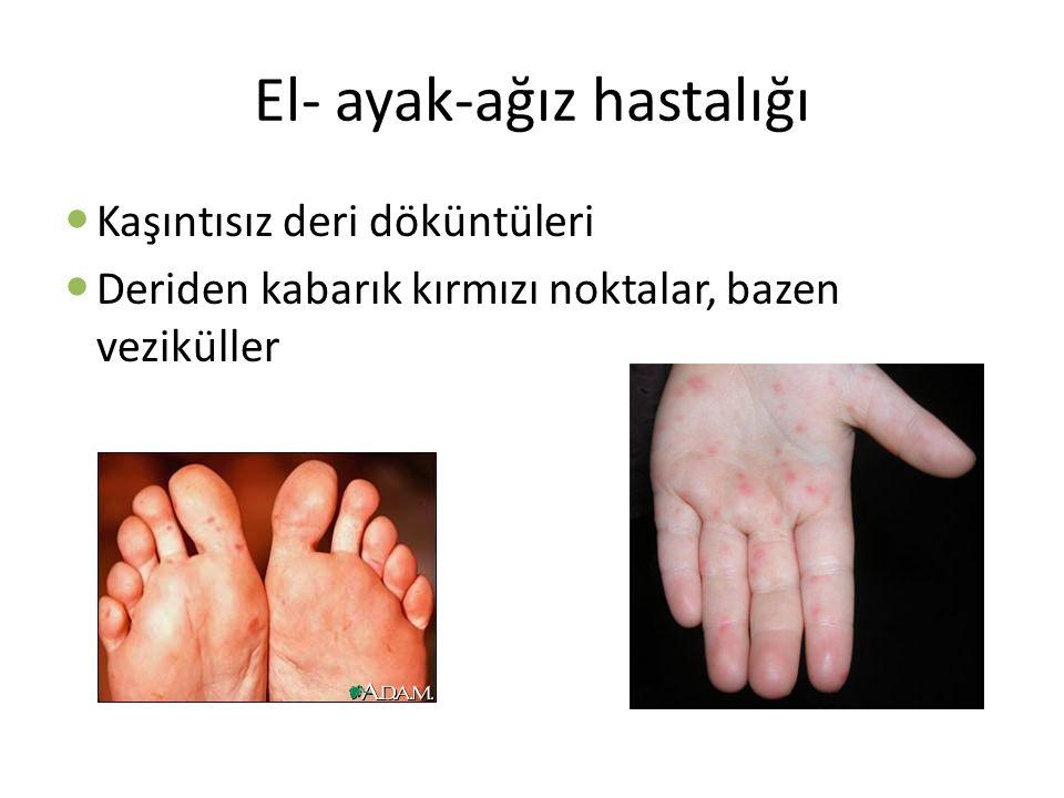 El- ayak-ağız hastalığı Kaşıntısız deri döküntüleri Deriden kabarık kırmızı noktalar, bazen veziküller