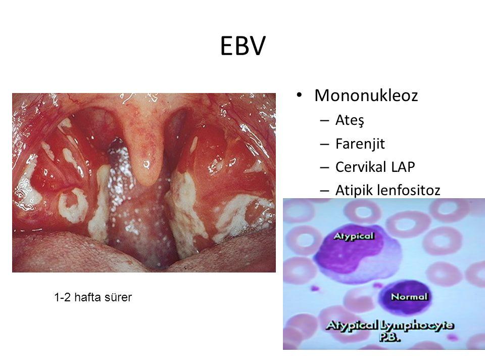 EBV Mononukleoz – Ateş – Farenjit – Cervikal LAP – Atipik lenfositoz 1-2 hafta sürer