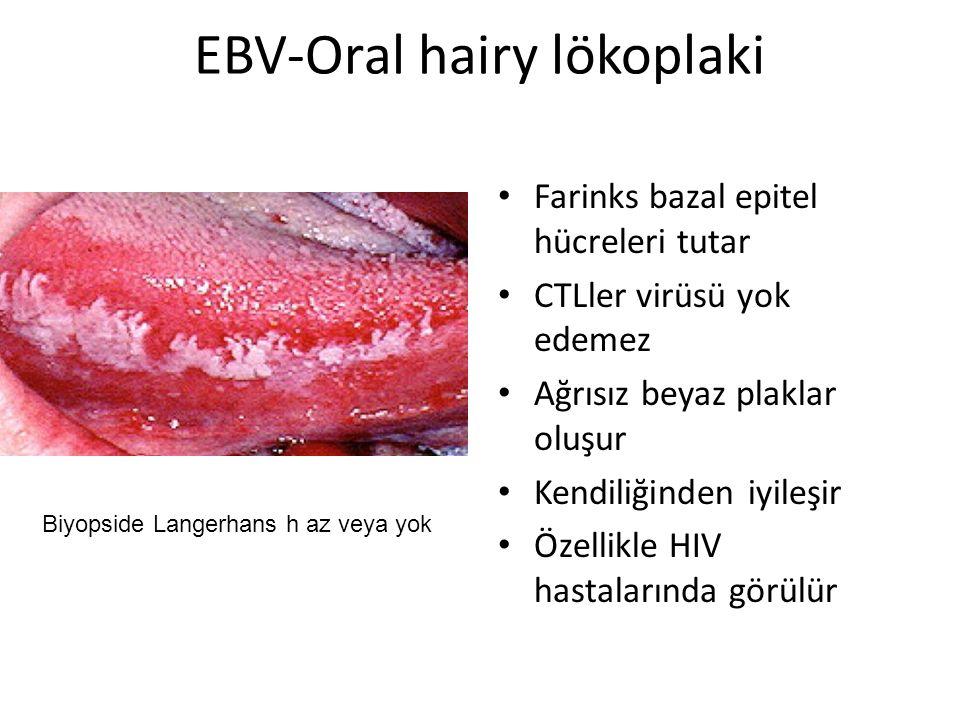 EBV-Oral hairy lökoplaki Farinks bazal epitel hücreleri tutar CTLler virüsü yok edemez Ağrısız beyaz plaklar oluşur Kendiliğinden iyileşir Özellikle H