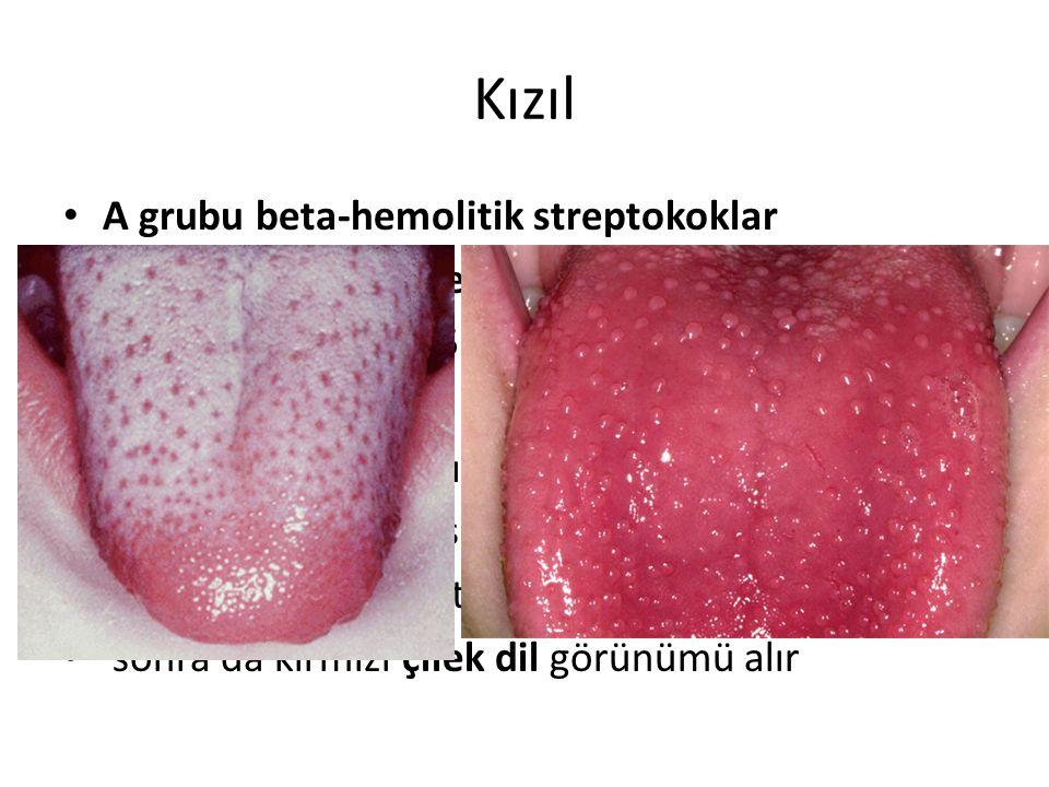 Kızıl A grubu beta-hemolitik streptokoklar Eritrojenik toksin ile oluşur Kuluçka dönemi 2-5 gündür Ani yükselen ateş Boğaz ve baş ağrıları Ateşten 24-
