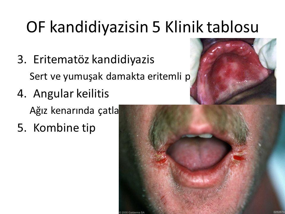 OF kandidiyazis-Tedavi 1.