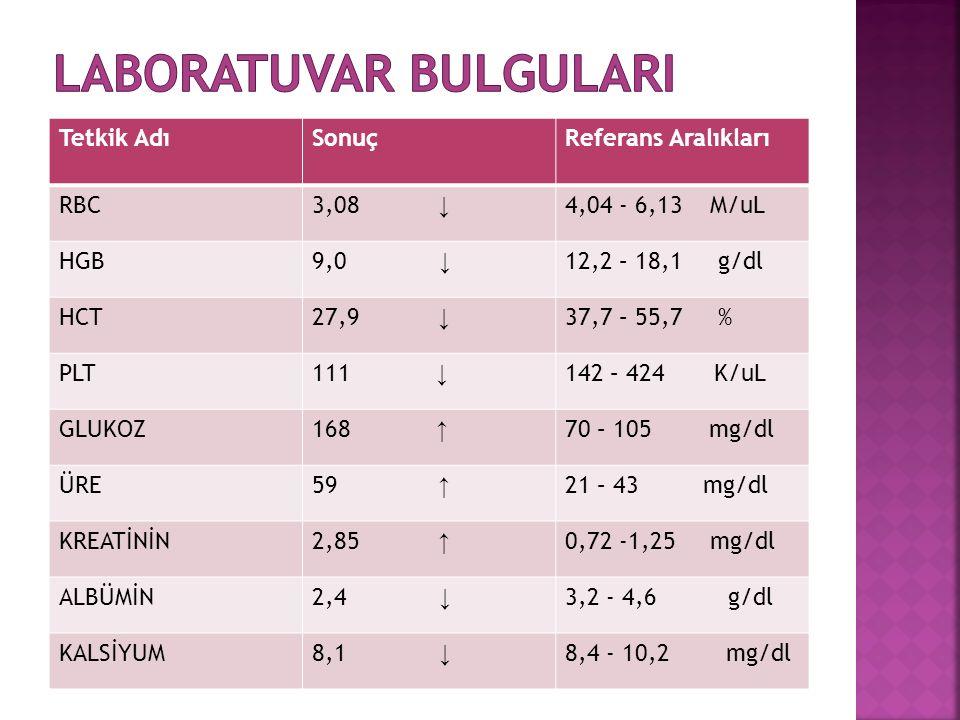 Tetkik AdıSonuçReferans Aralıkları RBC3,08 ↓ 4,04 - 6,13 M/uL HGB9,0 ↓ 12,2 – 18,1 g/dl HCT27,9 ↓ 37,7 – 55,7 % PLT111 ↓ 142 – 424 K/uL GLUKOZ168 ↑ 70 – 105 mg/dl ÜRE59 ↑ 21 – 43 mg/dl KREATİNİN2,85 ↑ 0,72 -1,25 mg/dl ALBÜMİN2,4 ↓ 3,2 - 4,6 g/dl KALSİYUM8,1 ↓ 8,4 - 10,2 mg/dl